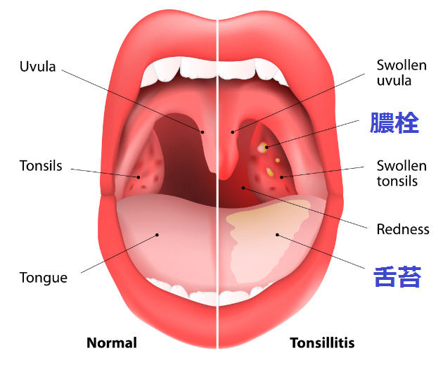 膿栓の図解