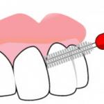 歯間ブラシが臭い
