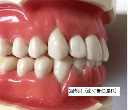 歯肉炎(歯ぐきの腫れ)