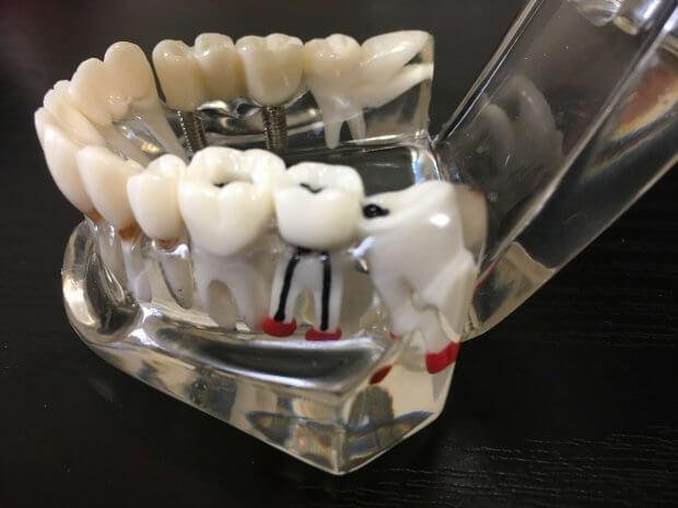 根尖性歯周炎で膿の袋ができている