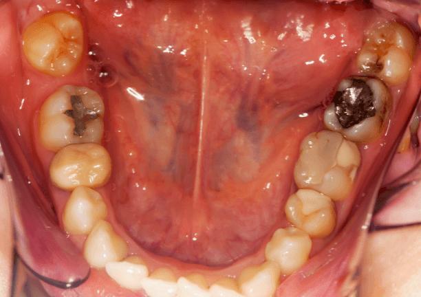 奥歯に銀歯