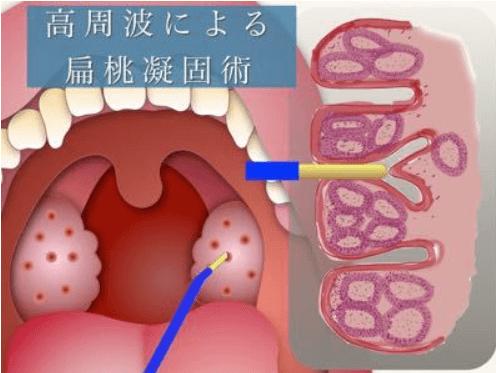 高周波による扁桃凝固術