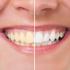 ホワイトニング歯磨き粉は効果がある?歯科で行うホワイトニングとの違いは?