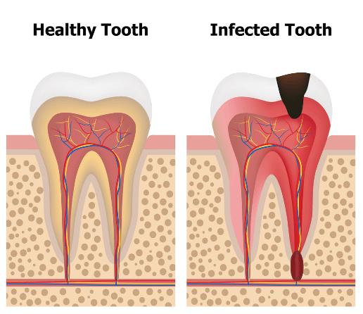 根尖歯周炎