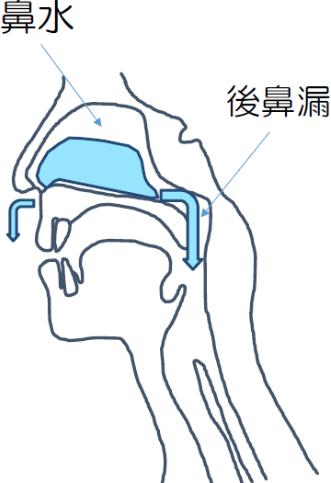 後鼻漏(こうびろう)