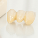 ポーセレンの歯