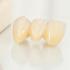 前歯の差し歯(ブリッジ)が臭い!差し歯の寿命は?保険の値段は?