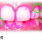 歯を白くする、歯ぐきを引き締めるための4種類の歯ブラシ