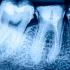 古い銀歯は口臭を発生します!臭くなる5つの原因と対策