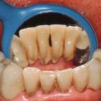 なぜ歯石取りが必要なのですか?
