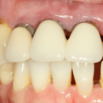 舌がヒリヒリ痛い!治らない場合の原因と治療は?