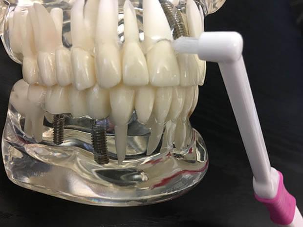 ワンタフトブラシで歯ぐきの間を磨く