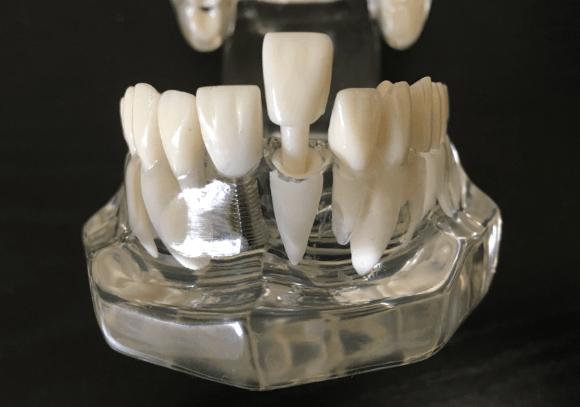 歯根の穴に差し歯を入れる