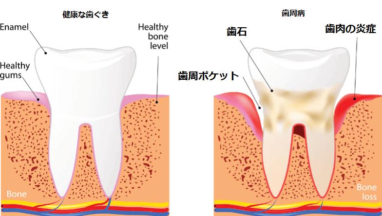 健康な歯ぐきと歯周病の歯ぐき