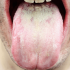 急に舌に白い苔が!ヒリヒリする!それって口腔カンジダ症かも?