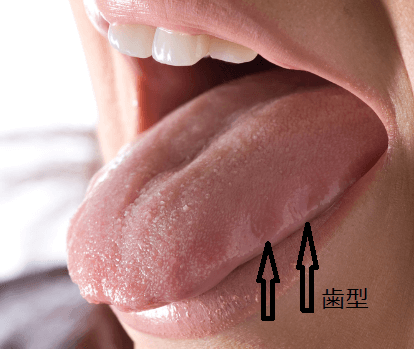 歯型がついている舌