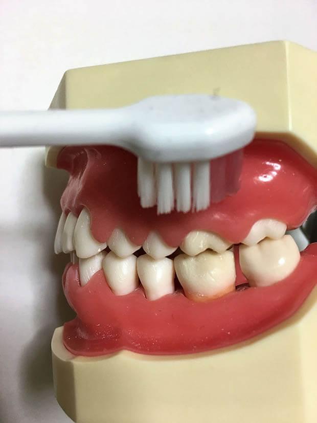 歯ぐきをブラッシング