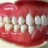 歯ぐきが下がり歯が伸びた!痩せた歯ぐきを元に戻す方法