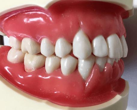 歯が長くなる