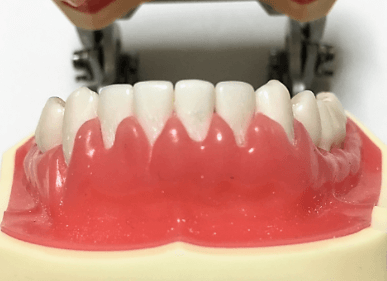 歯肉炎で腫れている歯ぐき