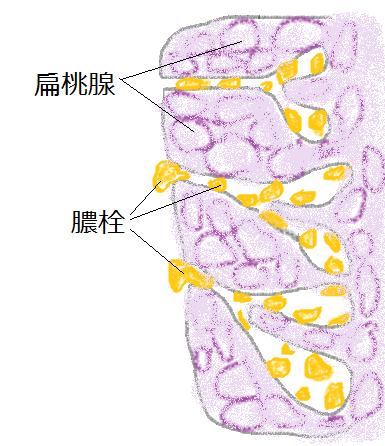 膿栓のできる仕組みの図