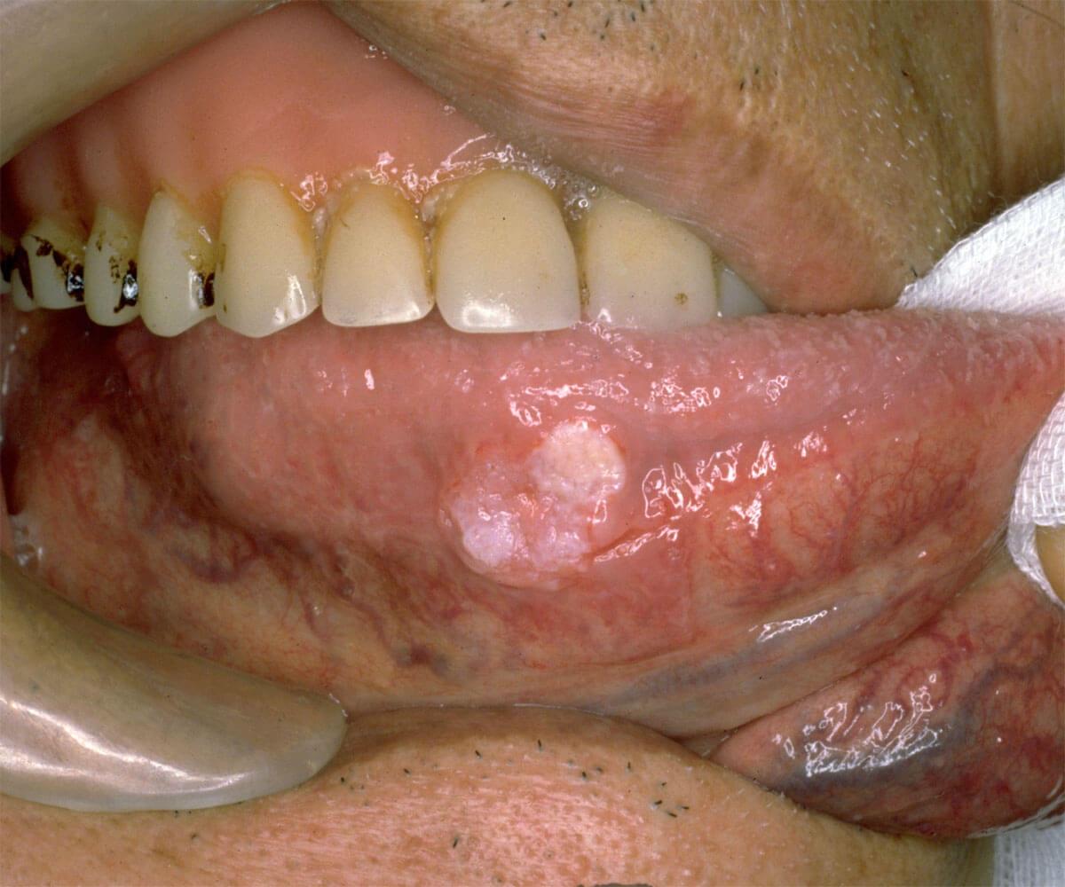 舌癌 症例2