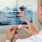歯周病による口臭!歯磨きで治す究極の方法