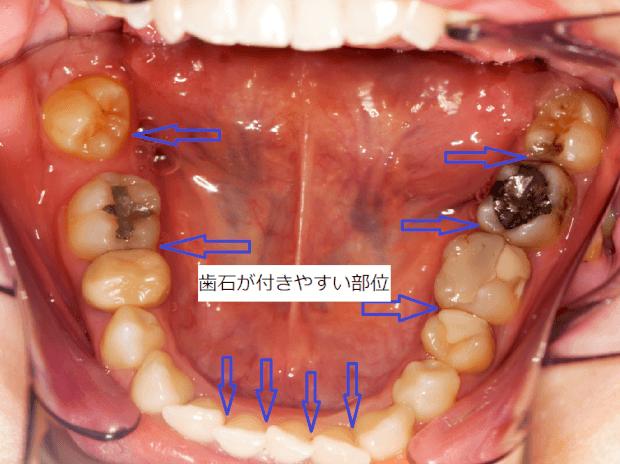 歯石がつきやすい部位