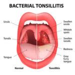 膿栓(のうせん)と舌苔(ぜったい)の深い関係!同時に改善する方法はコレ!