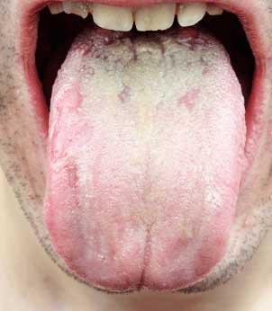 電動歯ブラシで舌を磨く方法??