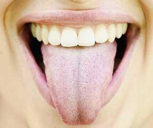 ない 舌 白い 取れ