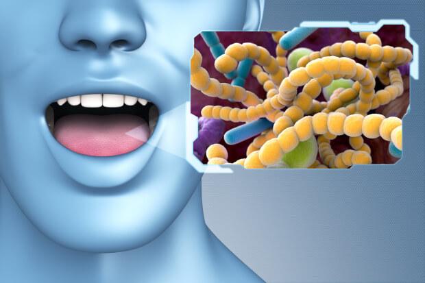 舌のばい菌