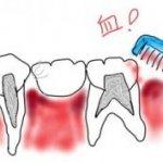 「さきいか」を噛むと歯や歯ぐきが痛くなる!その原因と対処法